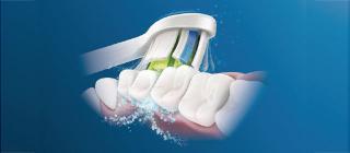 По-бели зъби. Направете го нежно.